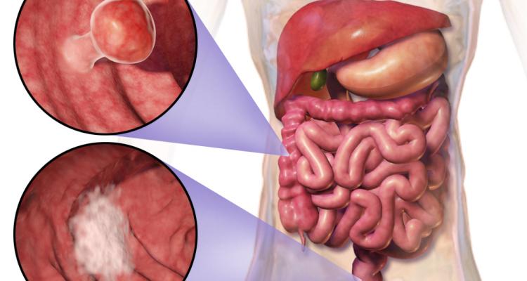 El consumo excesivo de carne roja y conservas incide en la aparición de cáncer de colon